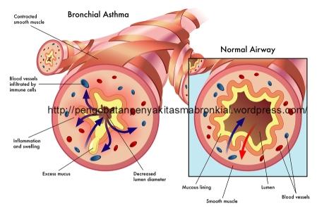 Pengobatan Penyakit Asma Bronkial